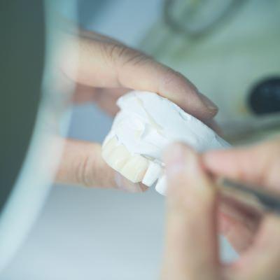 白い歯が与える印象